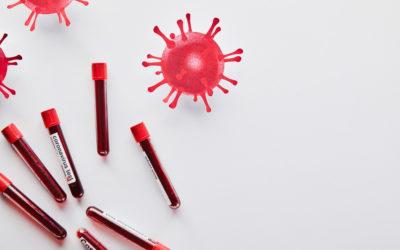 Szybki testy antygenowy Covid-19